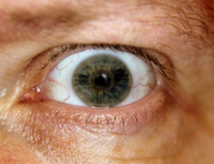 eyeball - 1